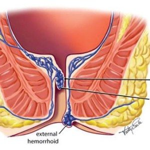 Utah Hemorrhoid Center