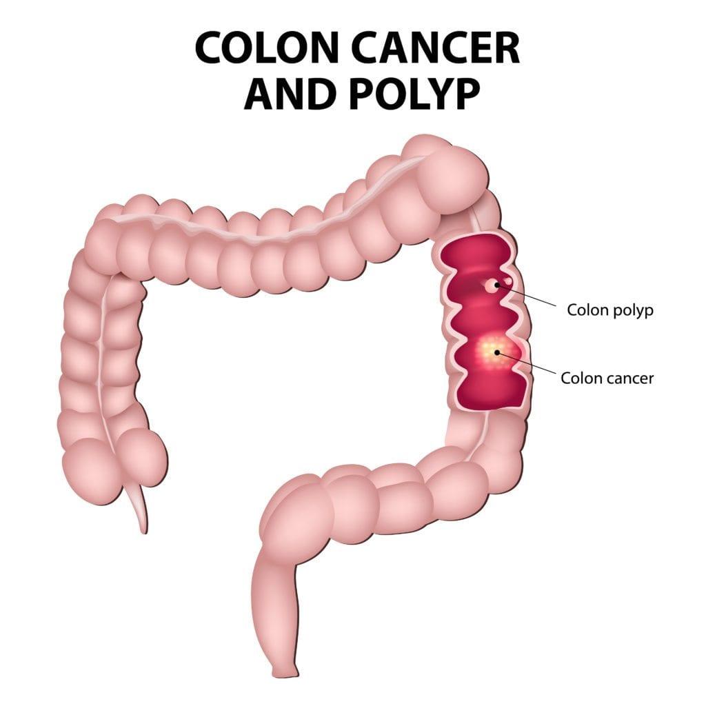Colon Polyps and Treatment